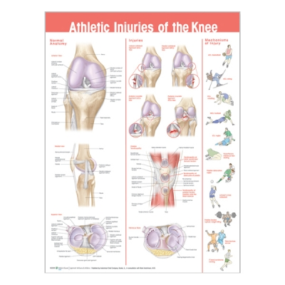 "Chart ""Athletic injuries of the knee"""