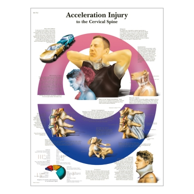 "Chart ""Acceleration Injury to the  Cervical Spine"""