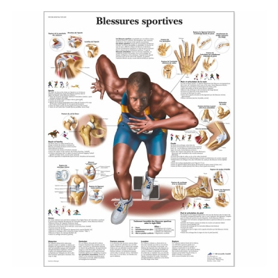 "Chart ""Blessures sportives"""